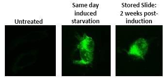 - AUTOdot Autophagy Visualization Dye SM1000b