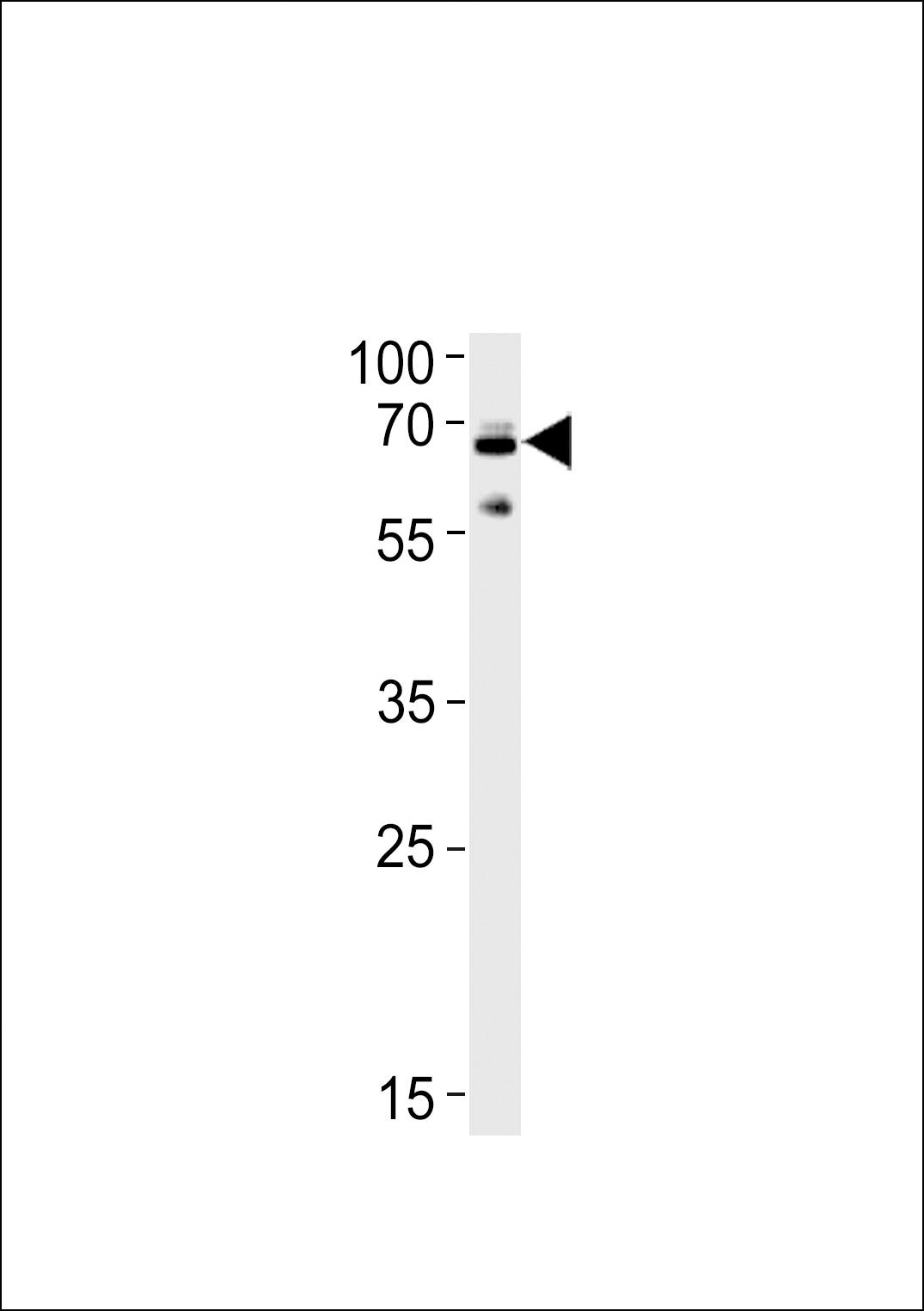 WB - Ubiquilin1 Antibody (Center) AP2176c