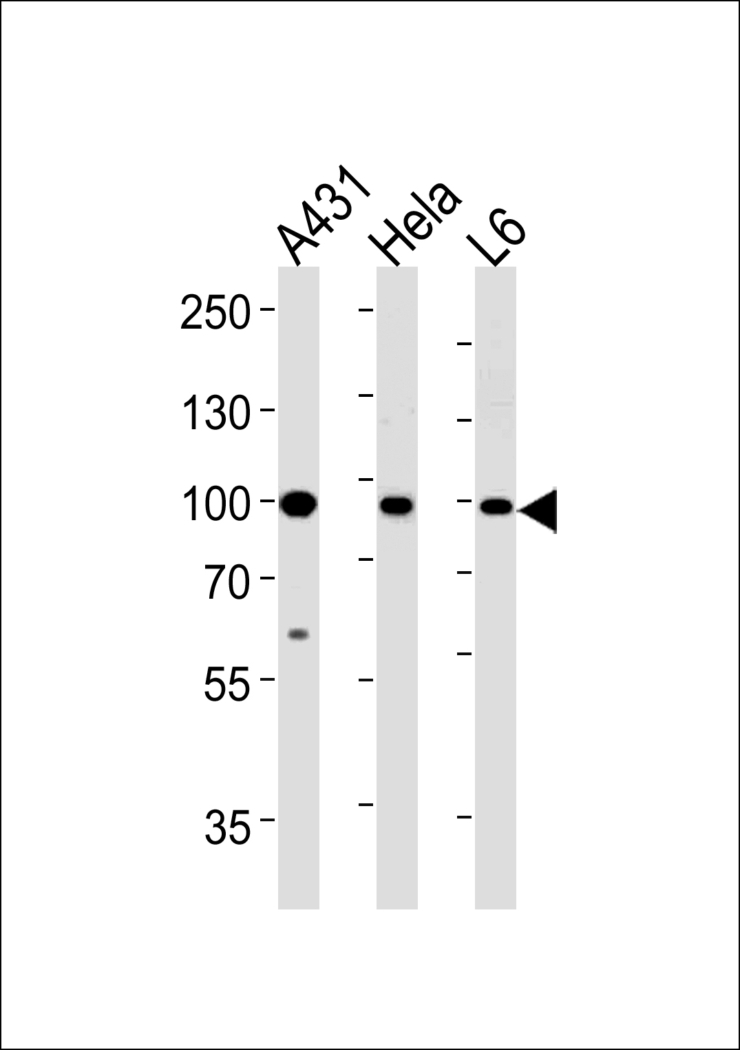 WB - HSP90AB1 Antibody (Center) AP7867d