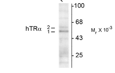 WB - Thyroid Hormone Receptor, α1/α2-Isotype Antibody AN1100
