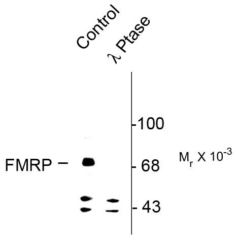 WB - Phospho-Ser499 FMRP (Fragile X Mental Retardation Protein) Antibody AN1228