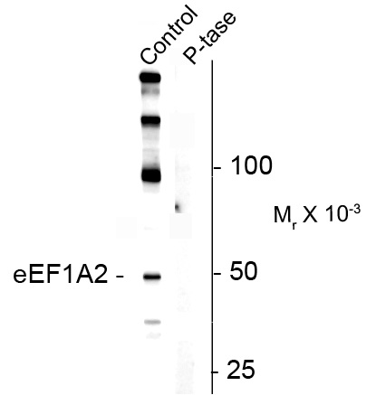 WB - Phospho-Ser358 Eukaryotic Elongation Factor 1 alpha 2 (eEF1A2) Antibody AN1251