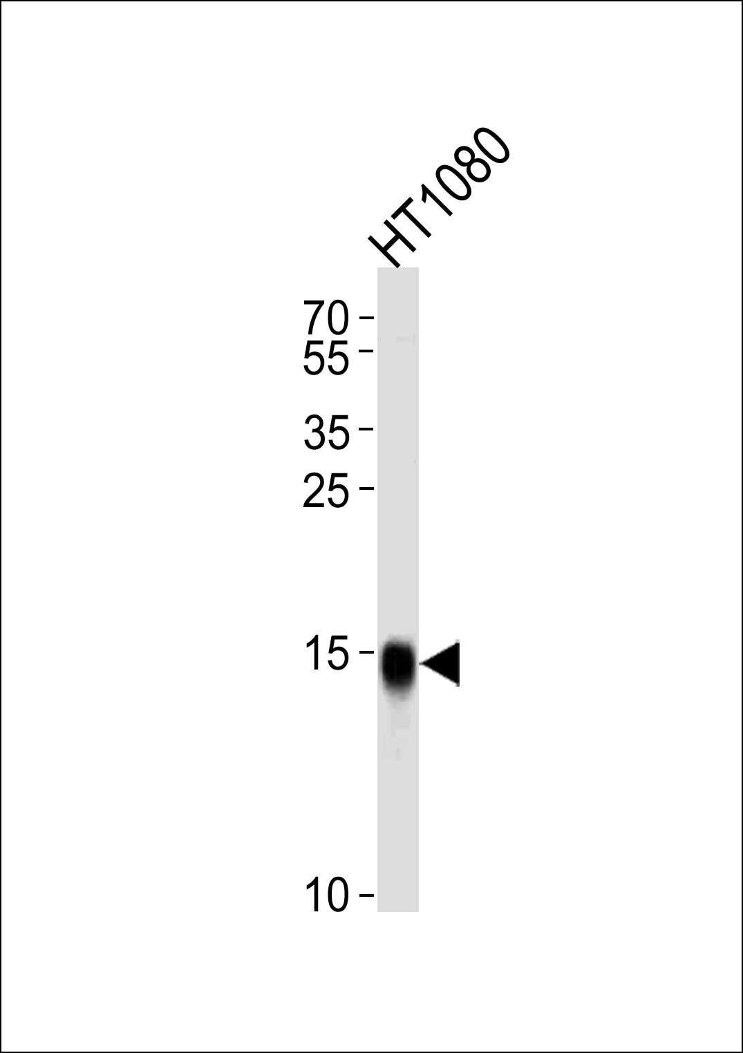 WB - Interferon-inducible protein (IFITM3) Antibody (N-term) AP1153a