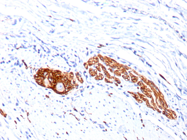 -  CD56 / NCAM1 / NKH1 (Neuronal Cell Marker) Antibody - With BSA and Azide AH10009