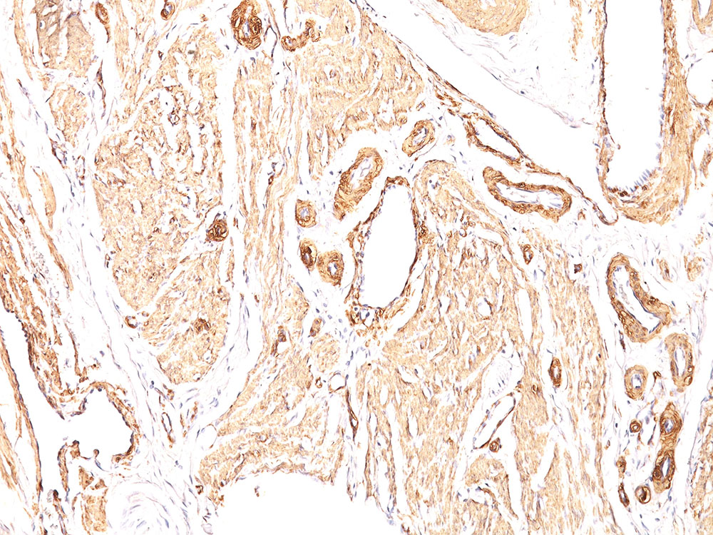 -  Actin, Smooth Muscle (Leiomyosarcoma Marker) Antibody - With BSA and Azide AH10016-20