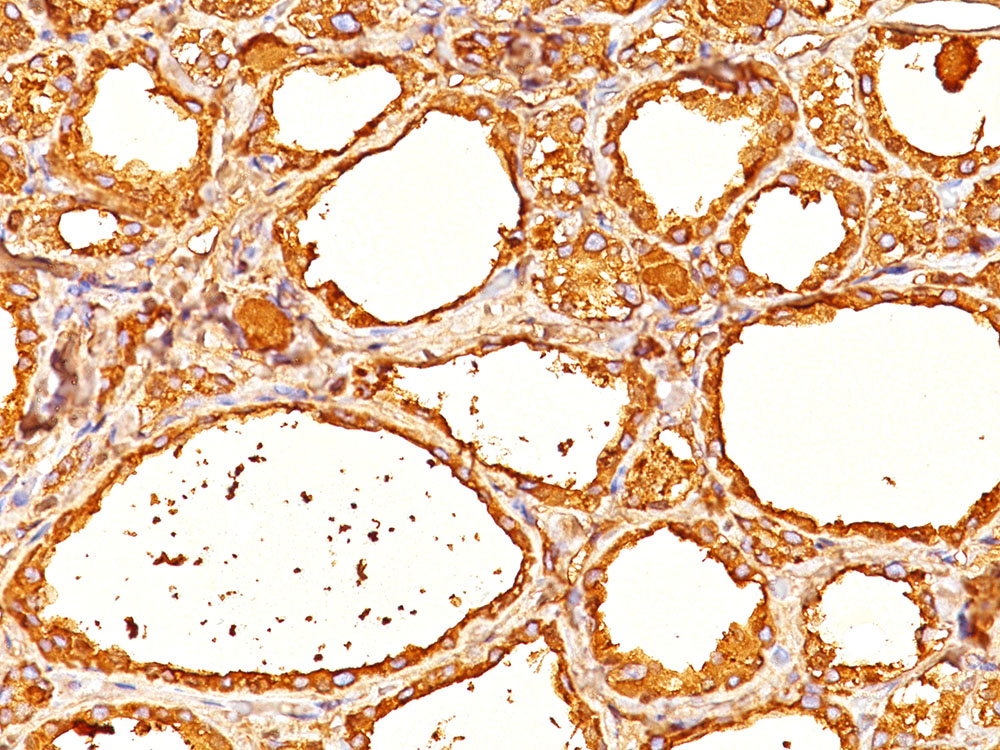 -  Thyroglobulin (Thyroidal Cell Marker) Antibody - With BSA and Azide AH10029