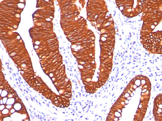 -  Cytokeratin 19 (KRT19) (Pancreatic Stem Cell Marker) Antibody - With BSA and Azide AH10058