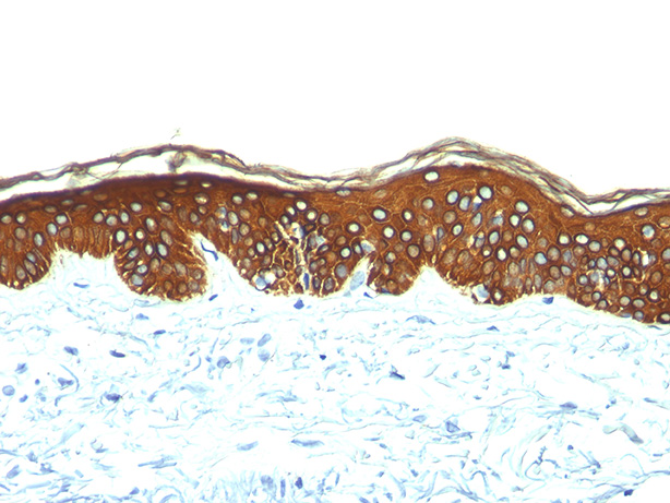 -  Cytokeratin, Basic (Type II or HMW) (Epithelial Marker) Antibody - With BSA and Azide AH10063-20