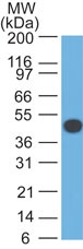 -  Cytokeratin 18 (KRT18) Antibody - With BSA and Azide AH10146
