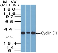 -  Cyclin D1 (G1-Cyclin & Mantle Cell Marker) Antibody - With BSA and Azide AH10148