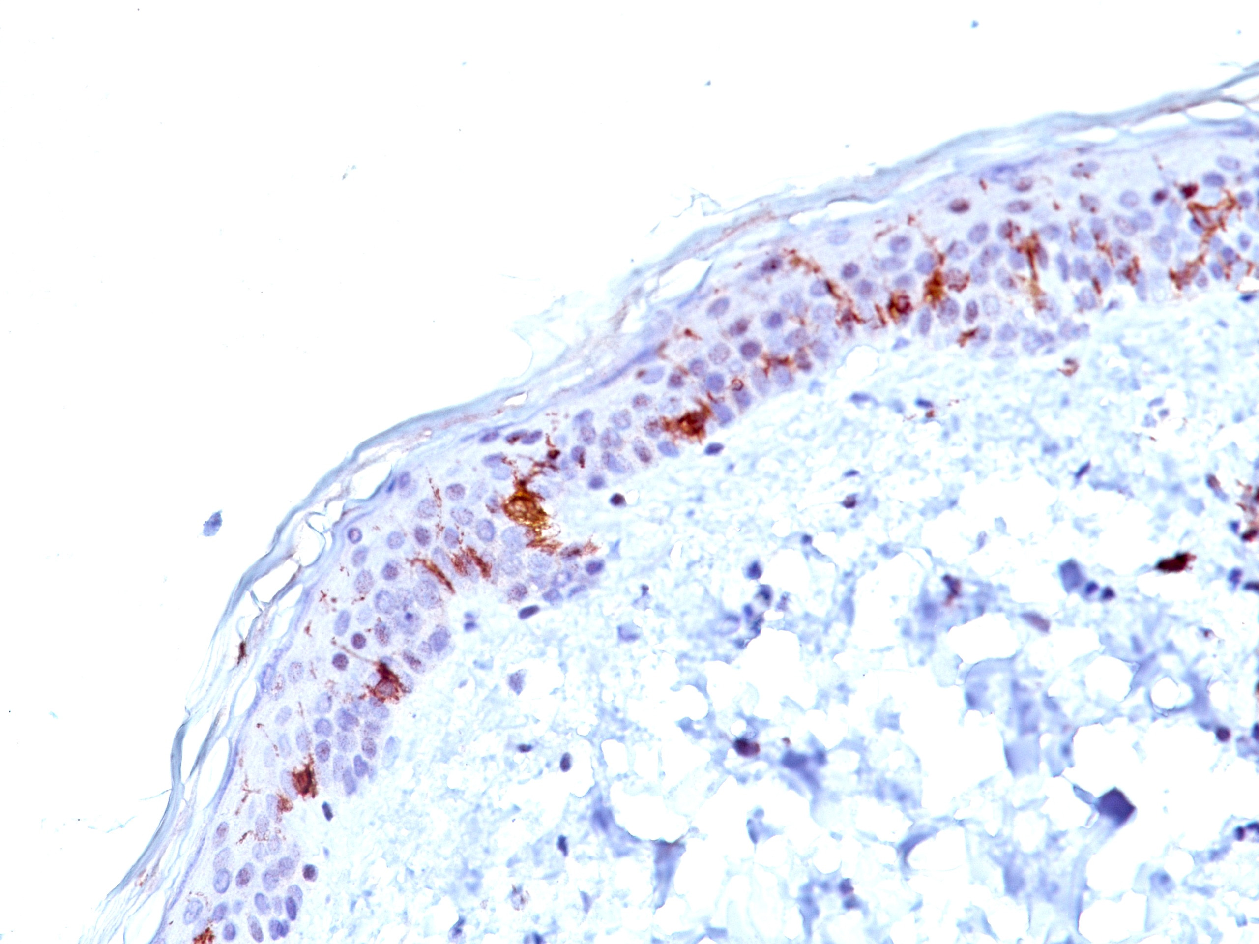 -  CD1a / HTA1 (Mature Langerhans Cells Marker) Antibody - With BSA and Azide AH10302-20