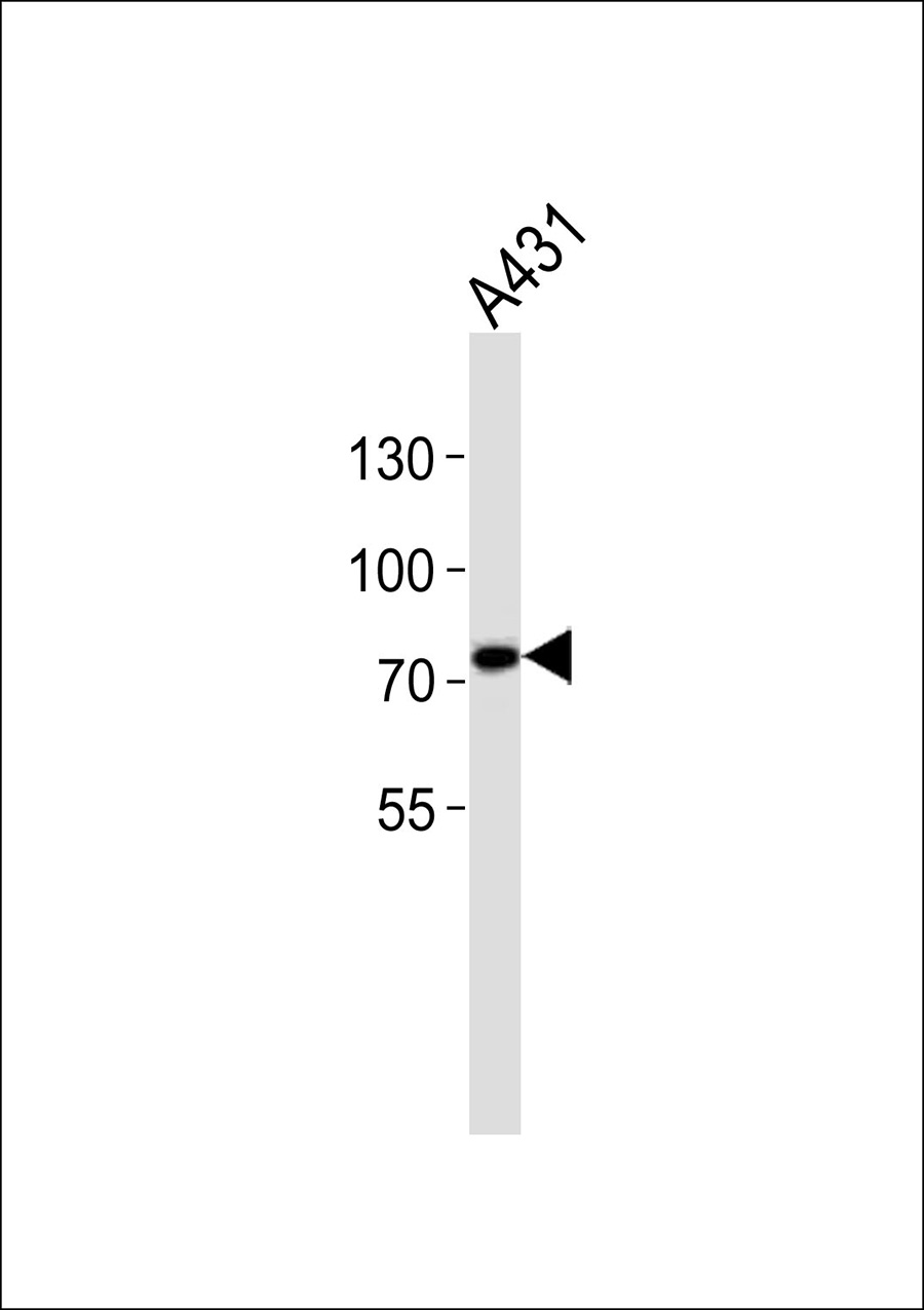WB - C1S Antibody (heavy chain, Cleaved-Arg437)  AP50647
