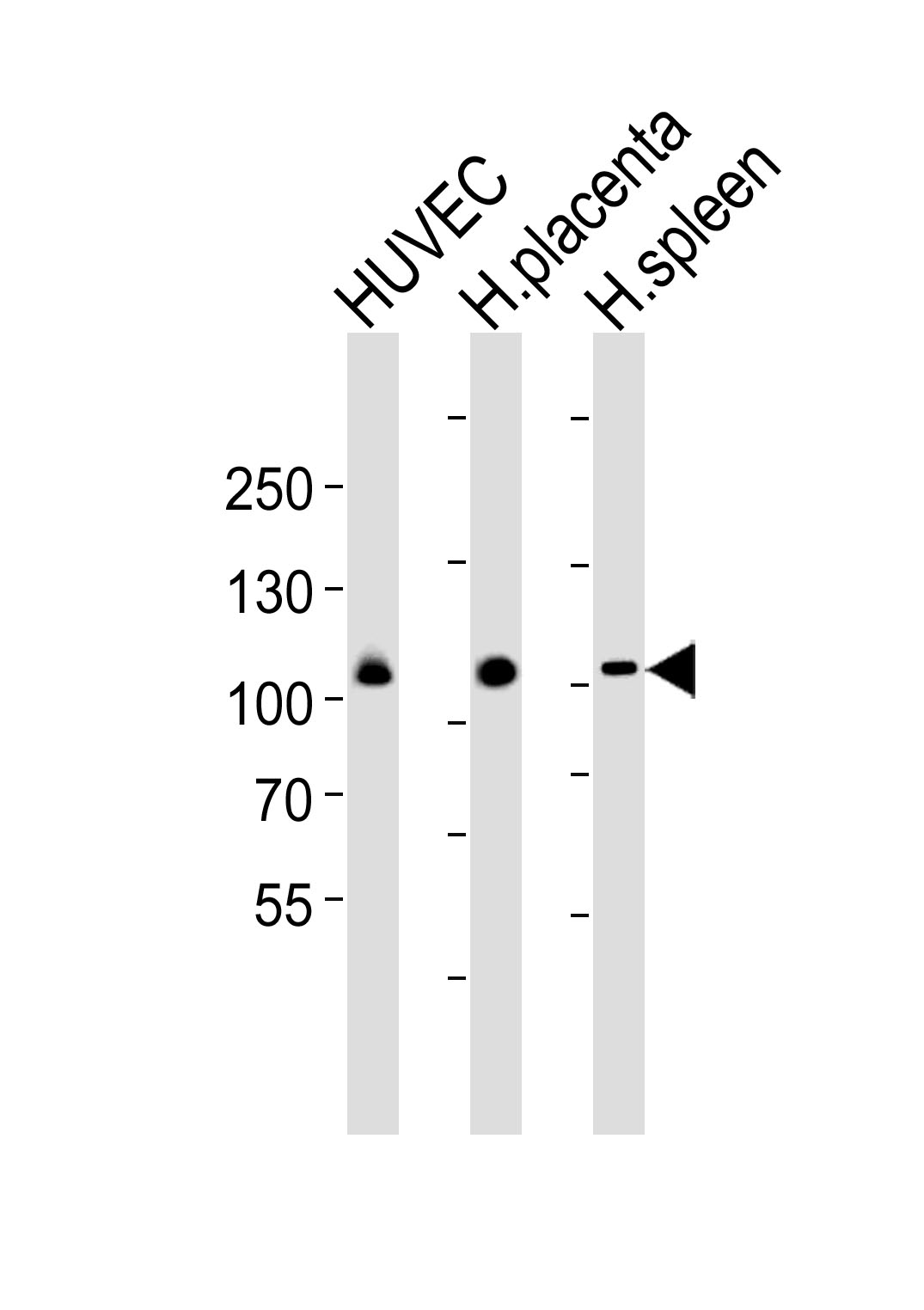 WB - GP1BA(Glycocalicin) Antibody (Center) AP20720c