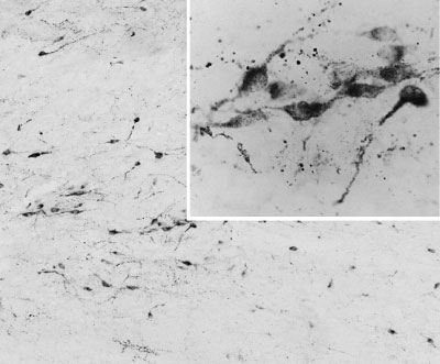 IHC - AGRP / Agouti-related protein Antibody (C-Term) AF2437a