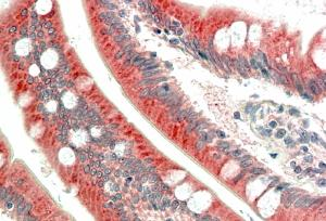 IHC - MIC1 / C18orf8 Antibody (internal region) AF2579a