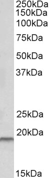 WB - SPINT2 Antibody (internal region) AF3288a