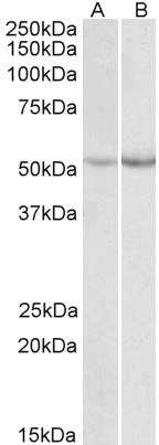 WB - Phenylalanine Hydroxylase Antibody (internal region) AF3321a