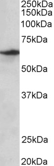 WB - SLC47A2 Antibody (internal region, near C-Term) AF3445a