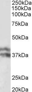 WB - HP beta chain Antibody (internal region) AF3661a