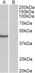 WB - TBP /Transcription factor IID (isoform1) Antibody (N-Term) AF3722a