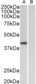 WB - TBP /Transcription factor IID (aa39-50) Antibody (internal region) AF3723a