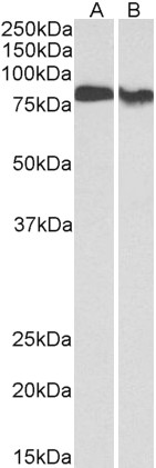 WB - PRKCB Antibody (internal region, near C-Term) AF3791a