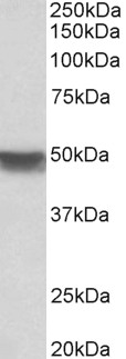 WB - cytokeratin 20 Antibody (internal region) AF3856a
