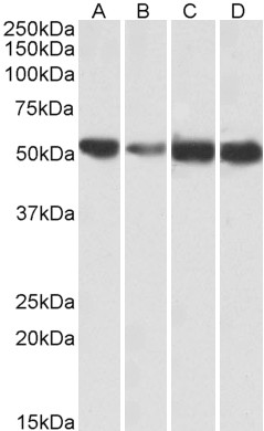 WB - ATP5A1 Antibody (internal region, near N-Term) AF4082a