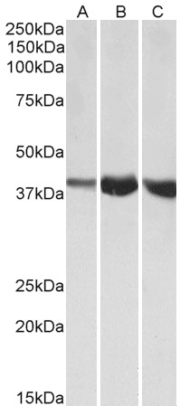 WB - ALDOA Antibody (internal region, near N-Term) AF4084a