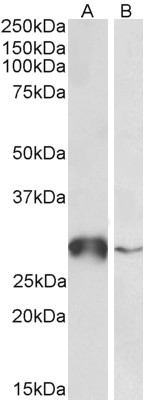 WB - GSTO1 Antibody (internal region near C-Term) AF4099a