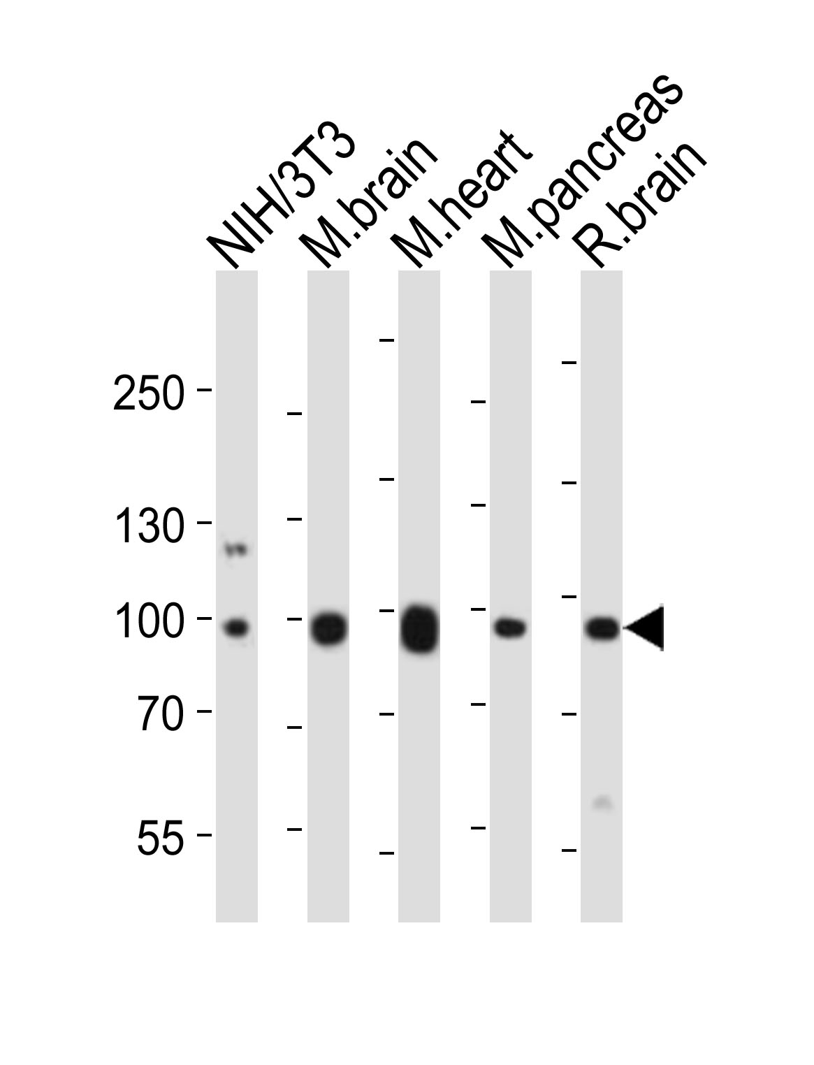 WB - Mouse Ephb1 Antibody (Center) AP20899a