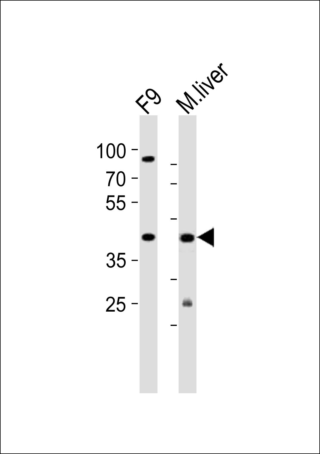 WB - (Mouse) Ubtfl1 Antibody (Center) AP20980a