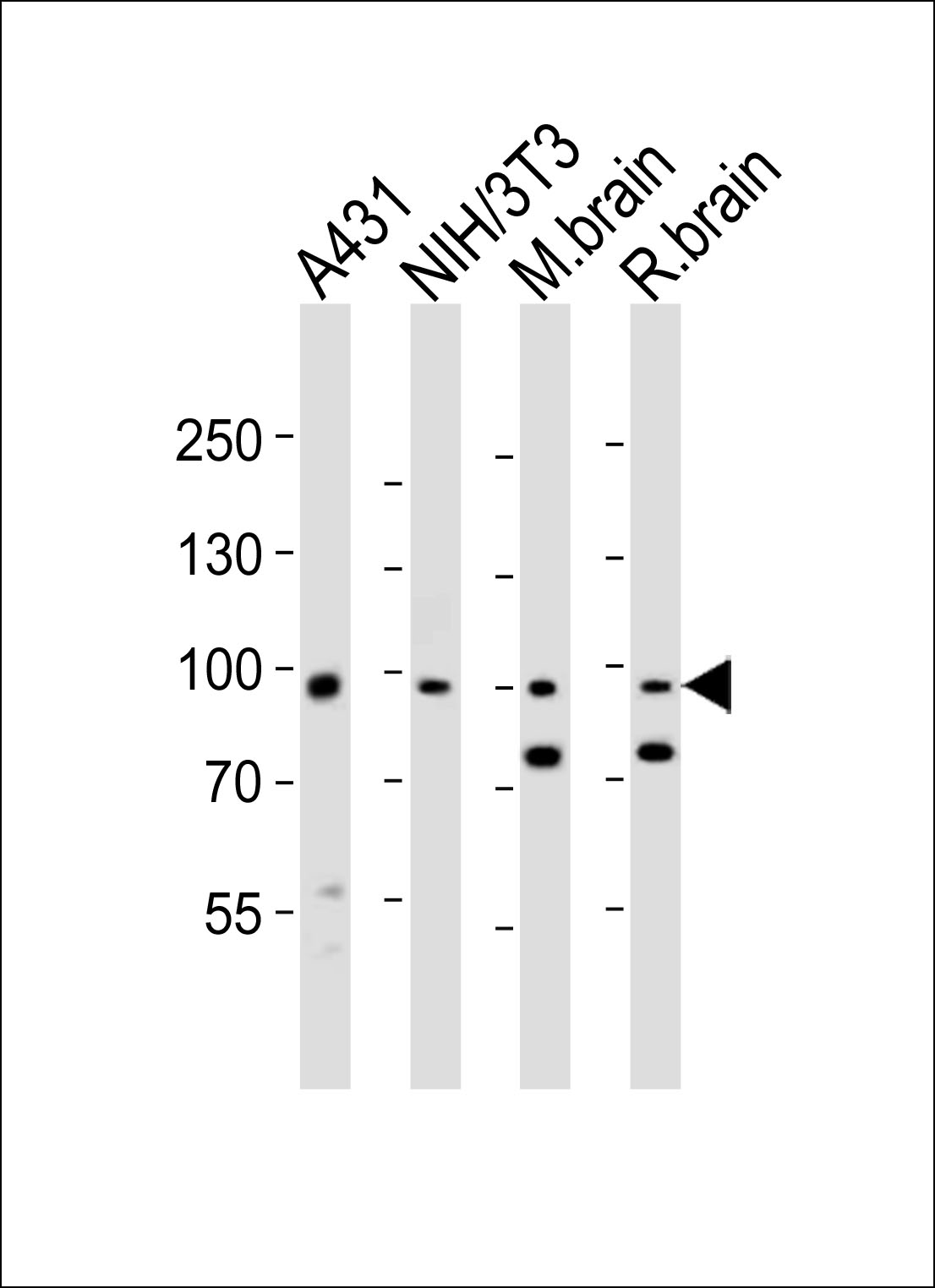 WB - Mouse Ephb1 Antibody (Center) AP20994a