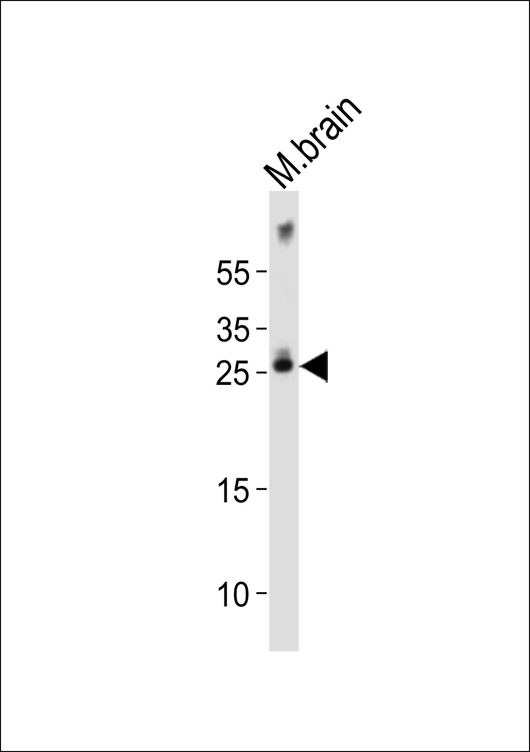 WB - Mouse Olig1 Antibody (Center) AP21009a