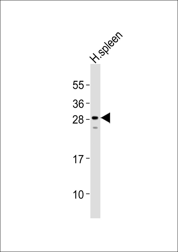 WB - Carbonic Anhydrase 1 Antibody AP51028