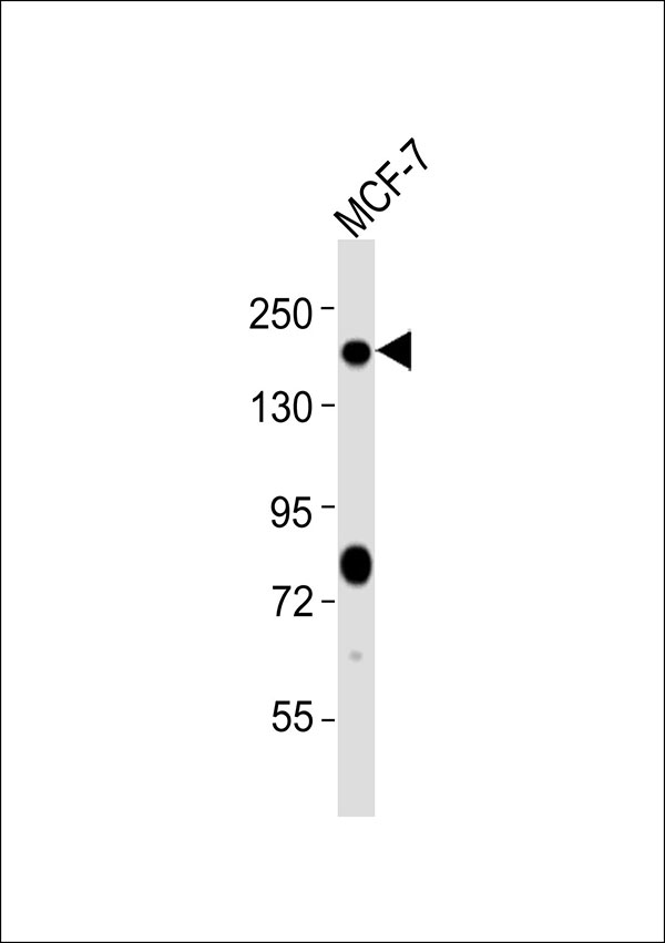 WB - Patched Antibody AP51457