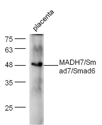 WB - Rabbit Anti-Smad7 + Smad6 Polyclonal Antibody AP52036