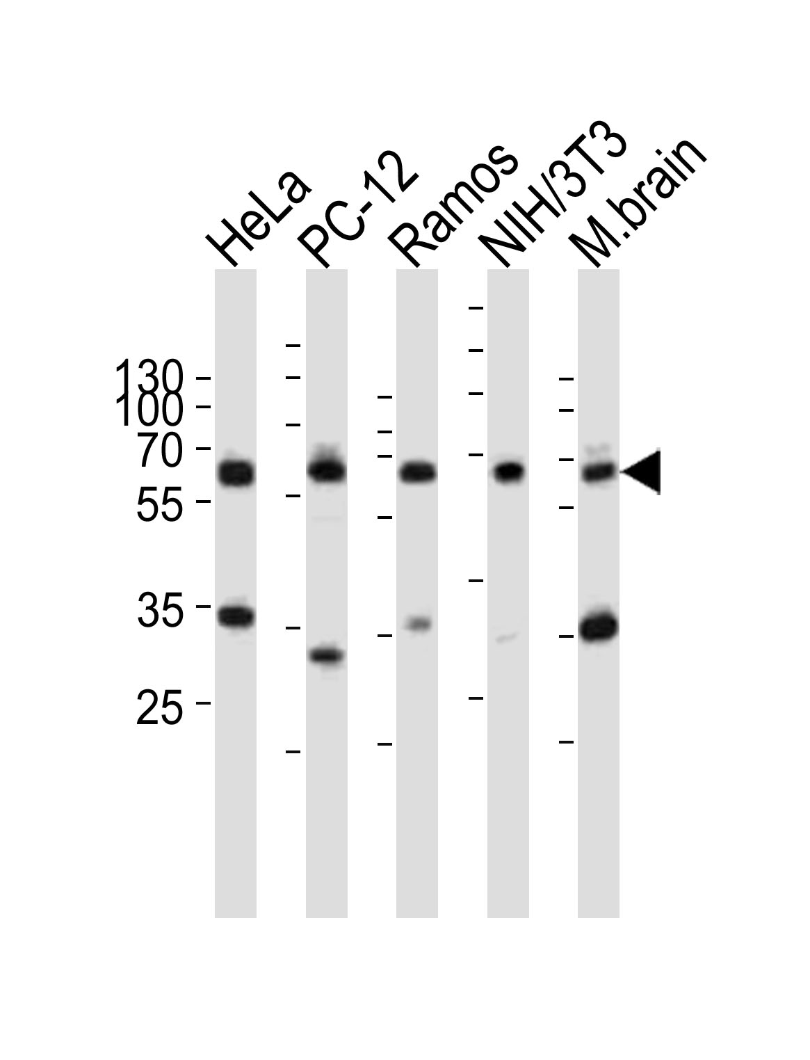 WB - Pyruvate Kinase (PKM2) Antibody (C-term) AP7044B