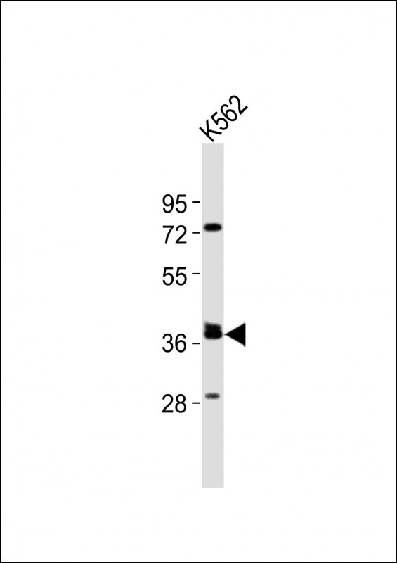 WB - (Mouse) Tal1 Antibody (Center) AP21155a