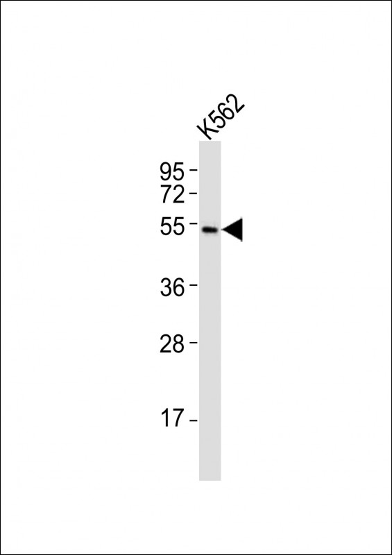 WB - (Mouse) Smarcd3 Antibody (Center) AP21168a