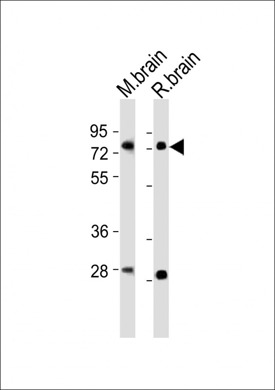 WB - (Mouse) Nr4a2 Antibody (Center) AP21233c