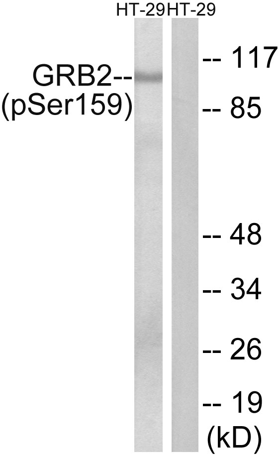 WB - GRB2-associated-binding protein 2 (Phospho-Ser159) Antibody AP52551