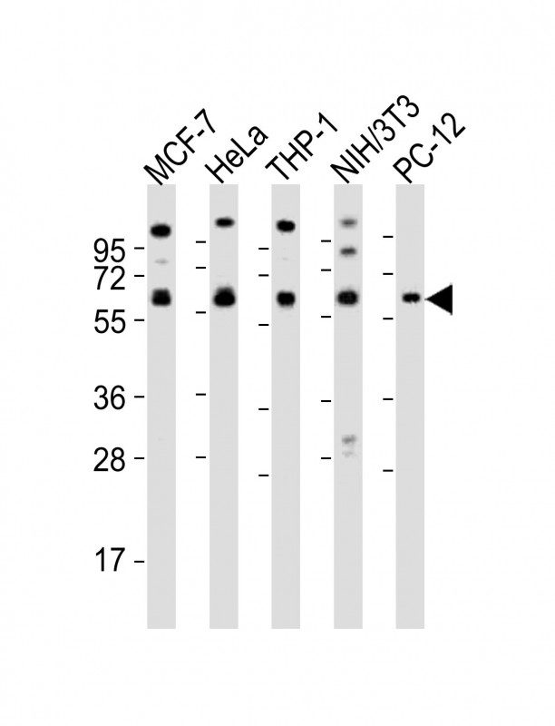 WB - Pyruvate Kinase (PKM2) Antibody (N-term) AP7044a
