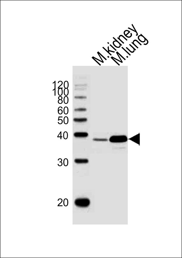 WB - Mouse Hoxa1 Antibody (Center) AW5236-U400