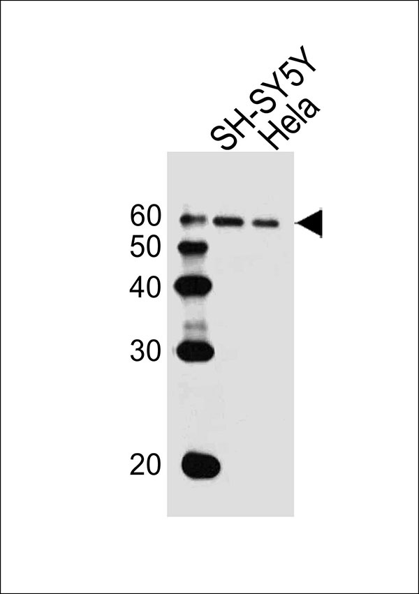 WB - HDAC2 Antibody (Center) AW5261-U100