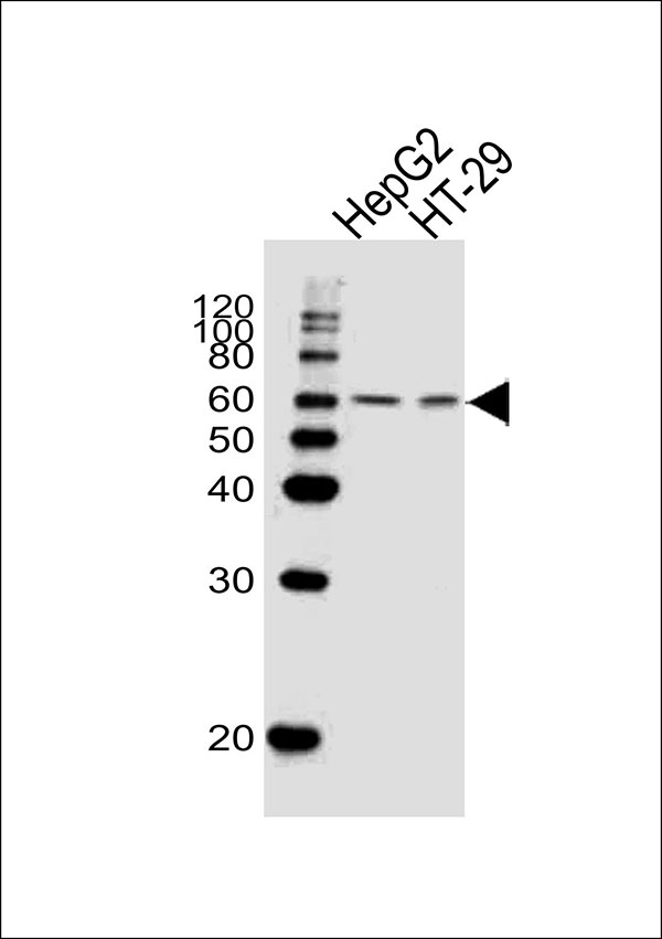 WB - SMAD6 Antibody (Center) AW5282-U400