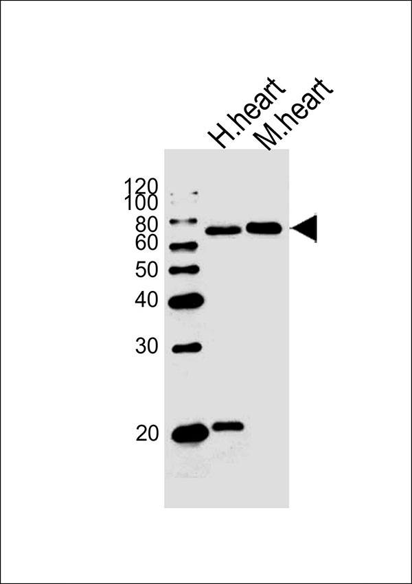 WB - HAS2 Antibody (Center) AW5442-U400