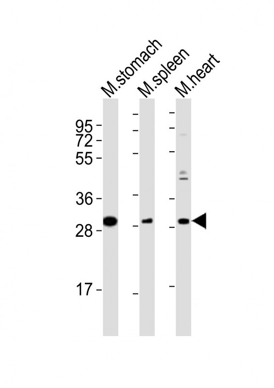WB - Mouse Nkx2-5 Antibody (Center) AP21222c