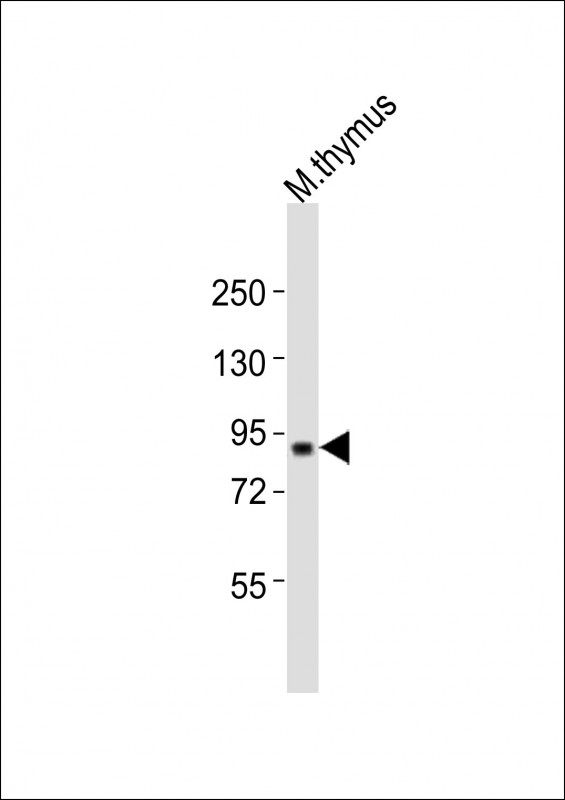 WB - Mouse Cxxc1 Antibody (Center) AP21466c