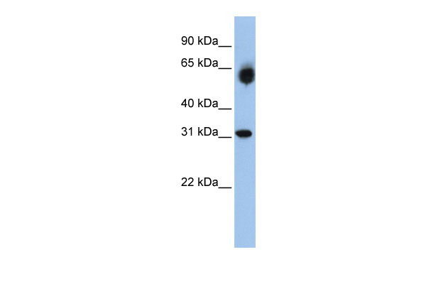 WB - DHRS2 antibody - middle region AI12102